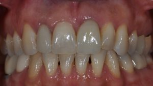 After Single Dental Implant