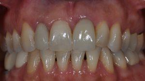After Single Dental Implant