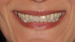 Before Single Dental Implant