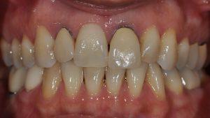Before Single Implant