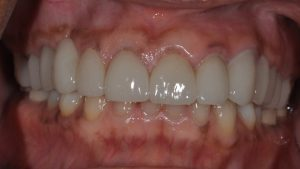 After Dental Crown case study photo