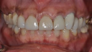 Before Dental Crown case study photo