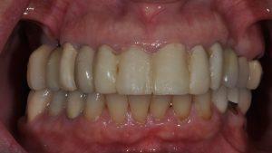 Before Dental Implants