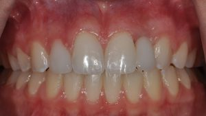 After Teeth Veneers, dental patient photo