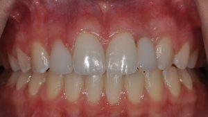 After Teeth Veneers, dental patient photo