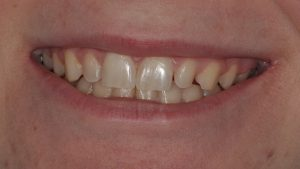 Before Teeth Veneers