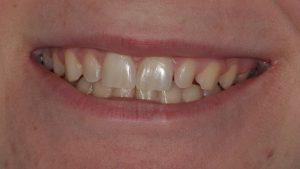 Before Teeth Veneers
