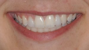 After Teeth Veneers case study photo