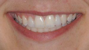 After Teeth Veneers case study photo