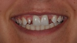 Before Veneers case study photo