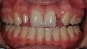 Before Teeth Veneers, dental patient photo