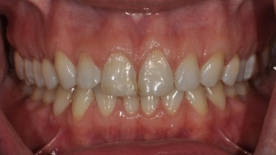 Changing the size and shape of teeth before