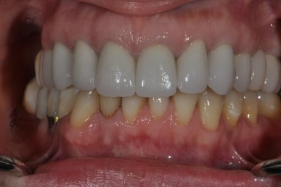 Conventional Crowns