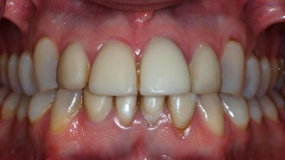 Discolored Teeth before