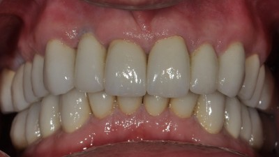 Large Cavities on the Anterior Teeth after
