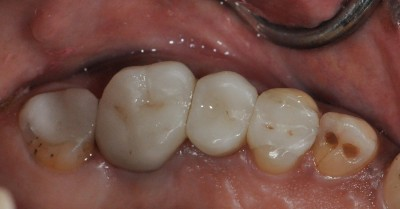 Porcelain Fillings After