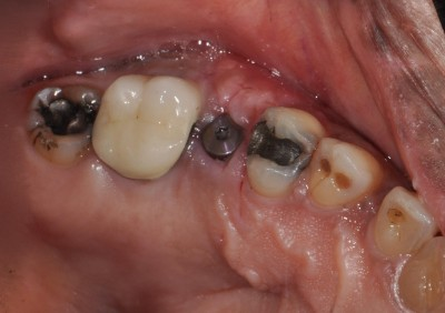 Porcelain Fillings Before
