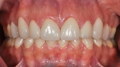 Spacing Between Teeth after