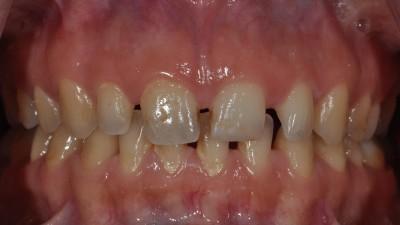 Spacing Between Teeth before