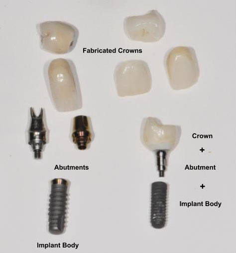 Parts of dental implants including fabricated crowns, abutment and dental implant body