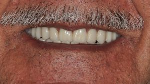 Digital Dentures Example