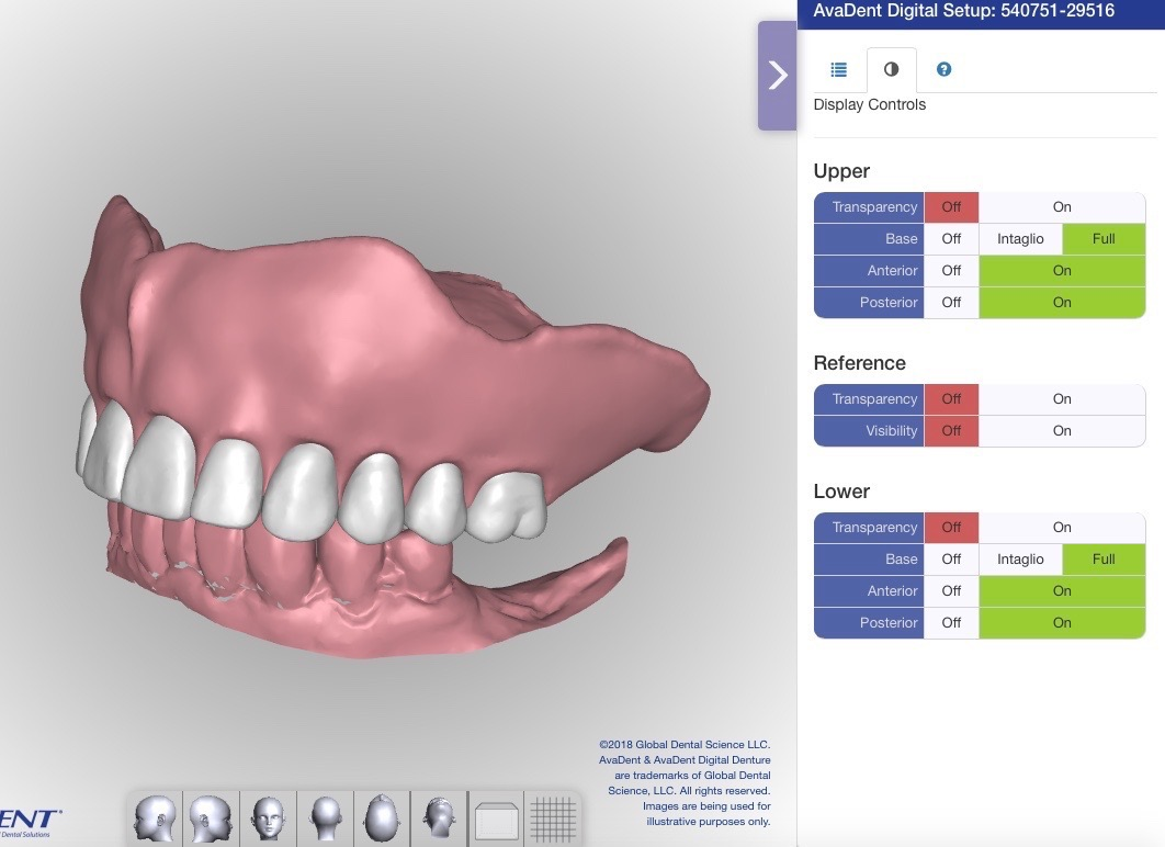 Computer Aided Design for Dentures