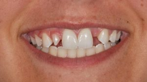 dental implants Obeid Dental