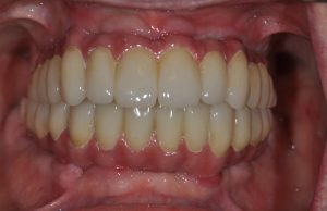 dental implants 3 Obeid Dental